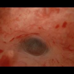 adénomyose en hystéroscopie