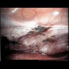 endométriose péritoine vésico-utérin